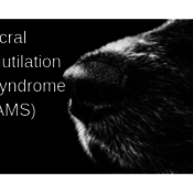 Acral Mutilation Syndrome (AMS)